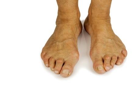 32514273_S_Bunions_Feet.jpg