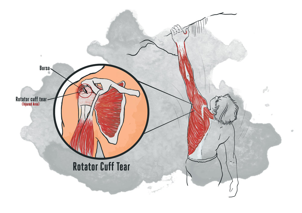 A rotator-cuff tear on the left shoulder of a climber after executing a dyno. Illustration: Naveed Hussain