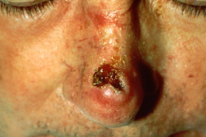 Wikipedia says this is squamous cell carcinoma.