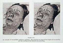 Pustular eruption of smallpox on face