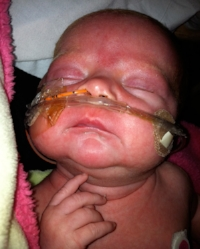 CDC file photo: infant with pertussis (whooping cough)