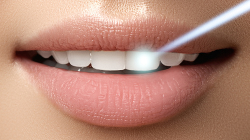 Teeth whitening at Dental at MediaCityUK.jpg