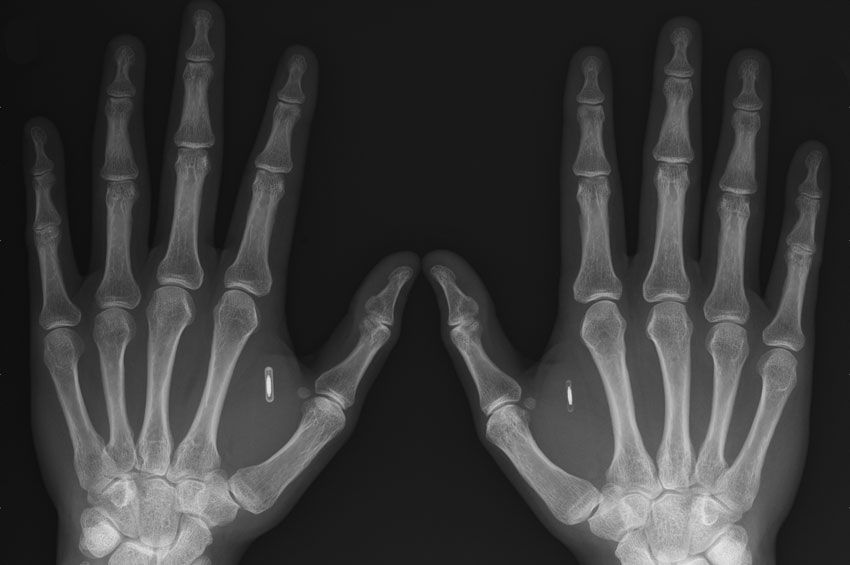 An X-ray showing the chips implanted in Amal Graafstra's hands Amal Graafstra