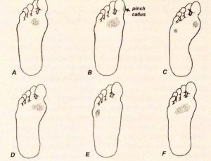 Callus Distribution Patterns