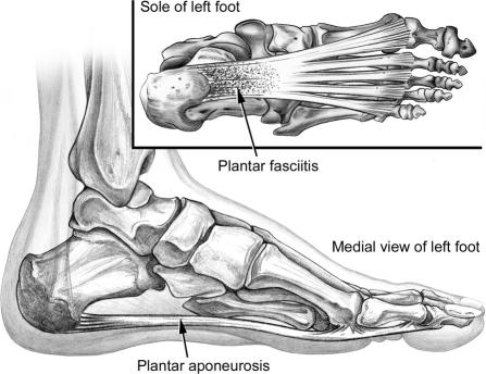 Figure 2. The plantar aponeurosis originates from the base of the calcaneus and extends distally to the phalnages. Source: http://www.ncbi.nlm.nih.gov/pubmed/16558682