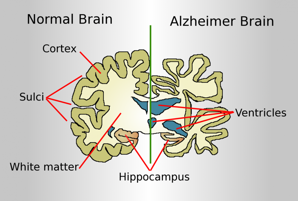 Alzheimer leads to nerve cell death and tissue degeneration throughout the brain, especially in hippocampus, responsible for the formation of new memories.