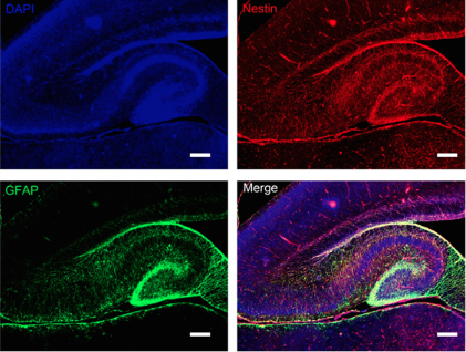 Fluorescent hippocampus. From https://www.researchgate.net/figure/237014822_fig6_Figure-8-Double-immunofluorescence-labeling-of-GFAP-and-nestin-in-the-hippocampus-from
