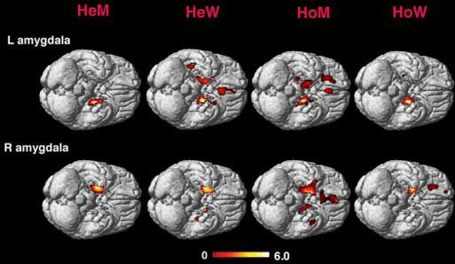The amygdaloid connectivity in heterosexual men and women (labeled HeM and HeW) and homosexual and women (labeled HoM and HoW). One can see the similarities between straight women and gay men and straight men and gay women. From: http://www.pnas.org/content/105/27/9403.abstract