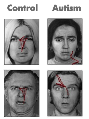 The red lines show the gaze path used by people with (right column) and without (left column) autism to explore faces. Modified from Pelphrey et al., (2002)