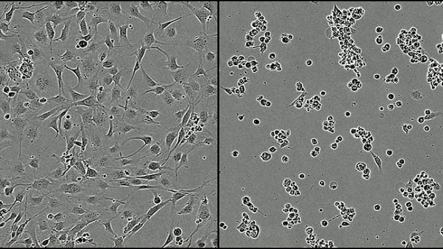 Glioblastoma cells under normal conditions (left) compared with glioblastoma cells after 48 hours of exposure to the mentioned synthetic chemical (right). At the picture to the right the cells are grouped together to undergo cell death. Credit: Wurdak Group, University of Leeds, UK.