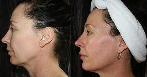 Microcurrent Facial Toning Before and after