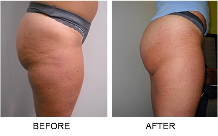 Microcurrent Body Scu  lpting and Infrared  Body Wraps Before and After