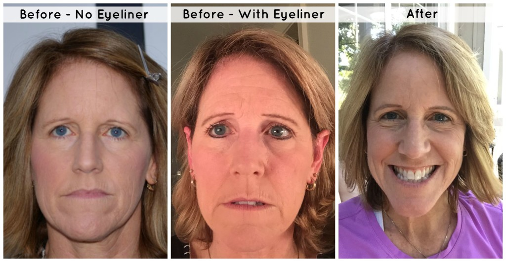Eyebrow Before After Pics