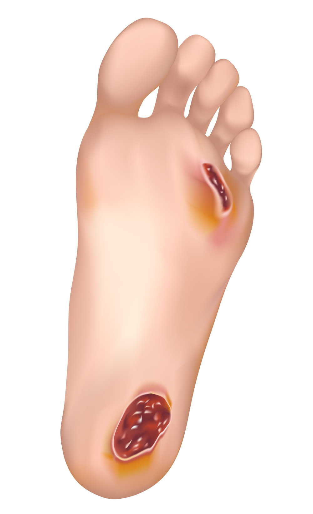 wound care affiliated foot ankle center