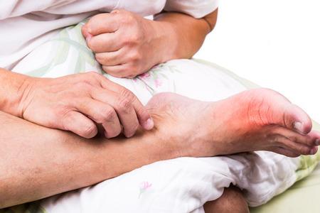 54524965_S-gout_toe_pain_big_man_pillow_foot.jpg