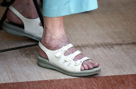 39552882_S_senior_sandles_woman_vericose_veins_rug.jpg