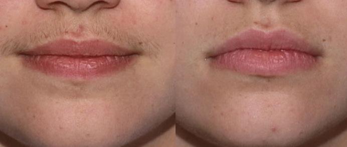 laser-hair-removal-upper-lip.jpg