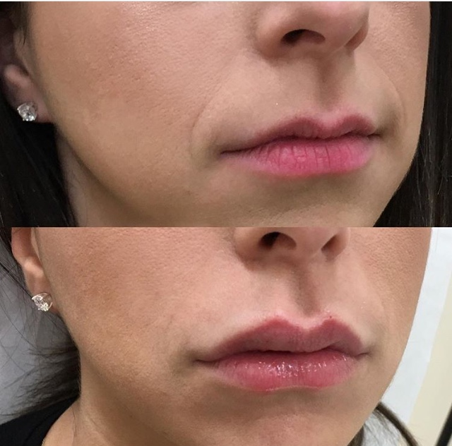 lip3.jpg