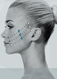 instalift-patient-suture.jpg