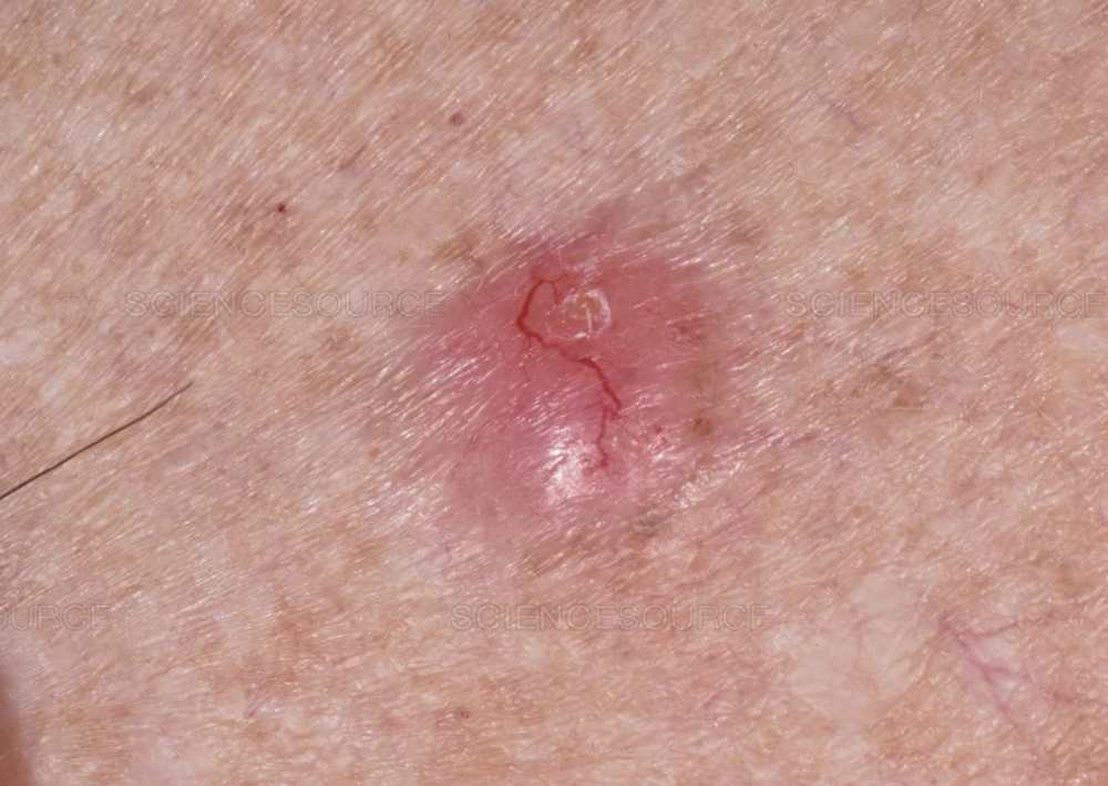 Basal Cell Carcinoma (BCC) - The most common skin cancer