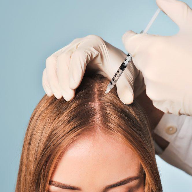 prp-hair-restoration-665x665.jpg