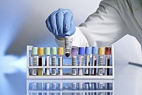 Carta dei servizi sanitari Centro Analisi Piave