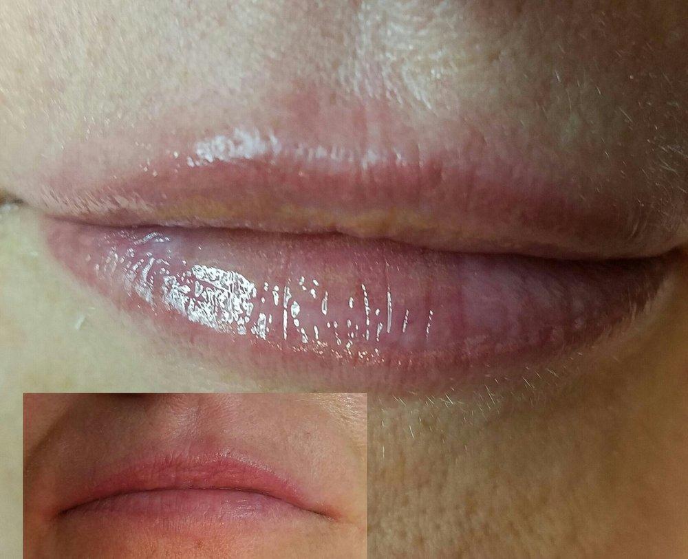 Permanent Makeup + Lip Enhancement -