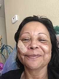 Debra six weeks after beating.