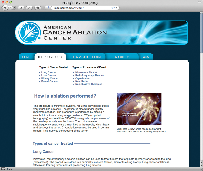 cancerablation_02.jpg
