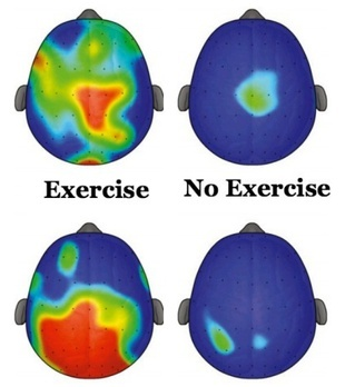 exercise-adhd.jpg