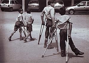 Foto antigua en la que se ve a un grupo de niños sufrir las consecuencias de esta enfermedad.