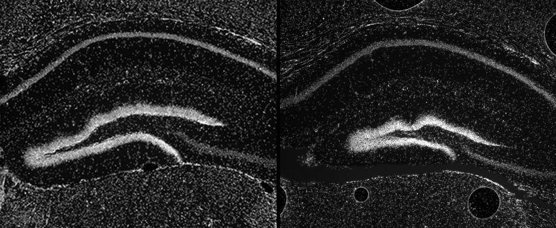 Parte normal del cerebro del roedor (izquierda) Vs Anomalís (derecha). Credit: D. Dickel et al., Cell 172, 1-9 Jan. 25, 2018. Elsevier Inc. 2017.