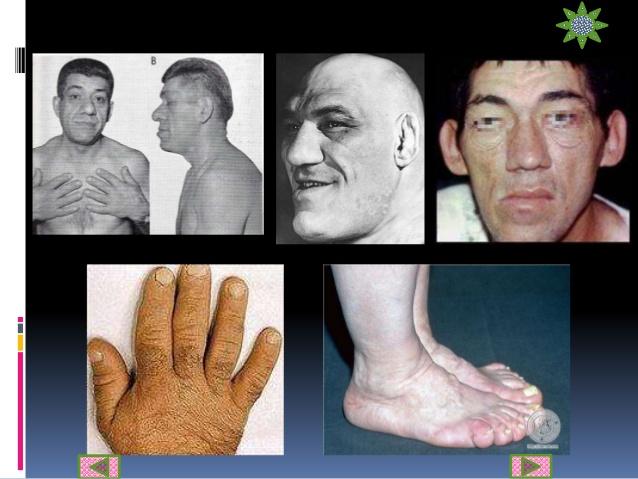 Rasgos típicos del Gigantismo o Acromegalia