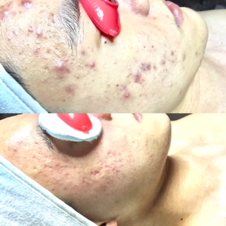 These improvements are the result of 6 months of weekly/biweekly Enzyme Facials and full DMK home care.