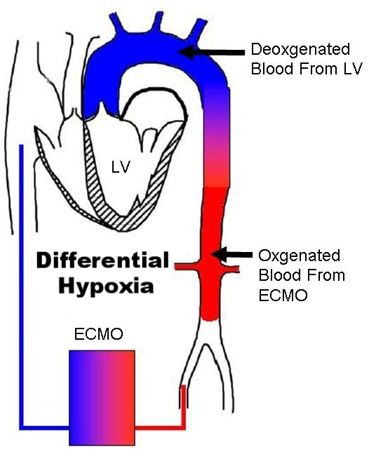 differential hypoxaemia.jpg