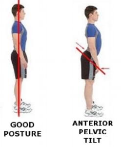 fix-anterior-pelvic-tilt-poor-posture.jpg