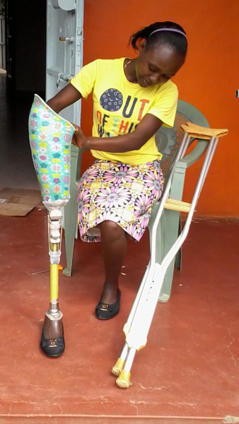 Catherine is 16-years-old and lives in Kenya. She lost her leg in June 2017 to cancer. Since the operation,  Catherine has not been able to return to school because she is not able to make the walk to school and back on crutches.