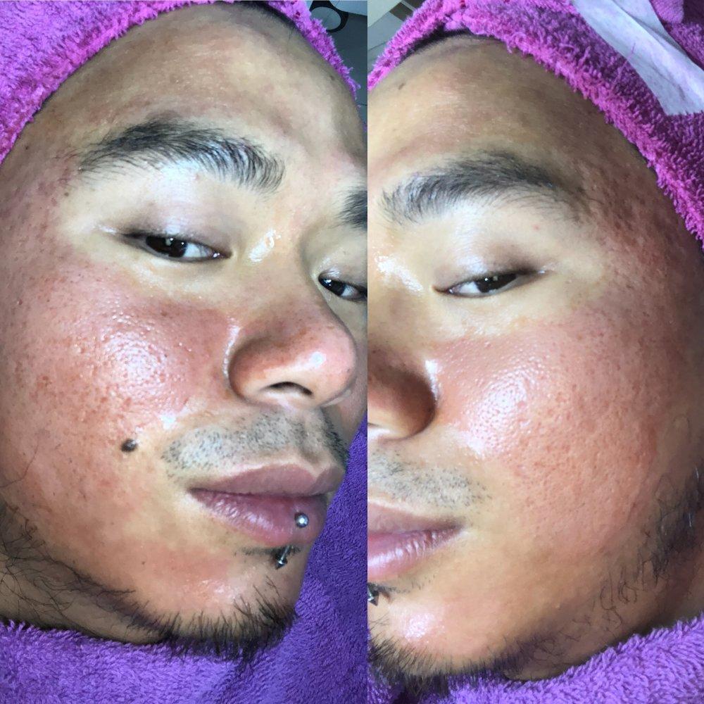 after dermaroller