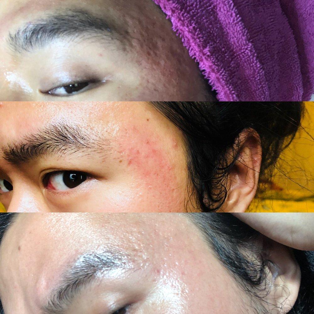 Asoka Remadja SkinCare 2.JPG