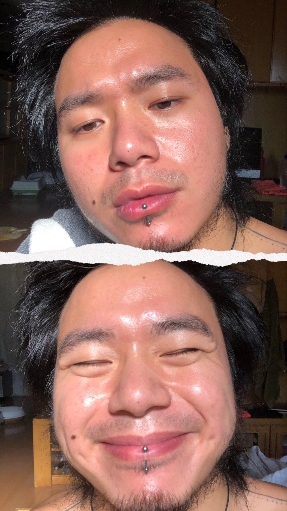 Liat yang atas, masih keliatan acne scar, dulu dalem banget - sekarang lumayan lah :D
