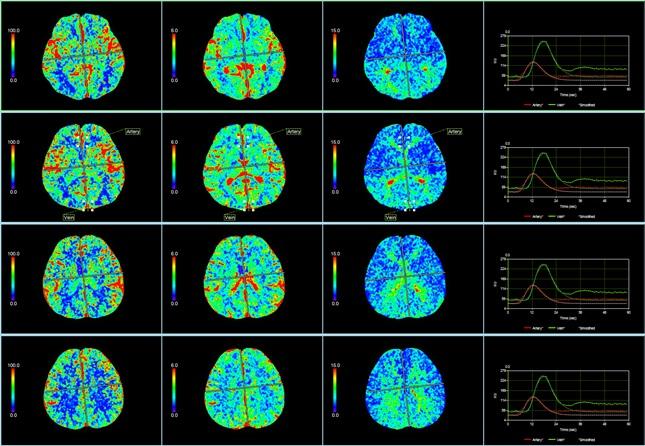 1-4-CT-perfusion.jpg