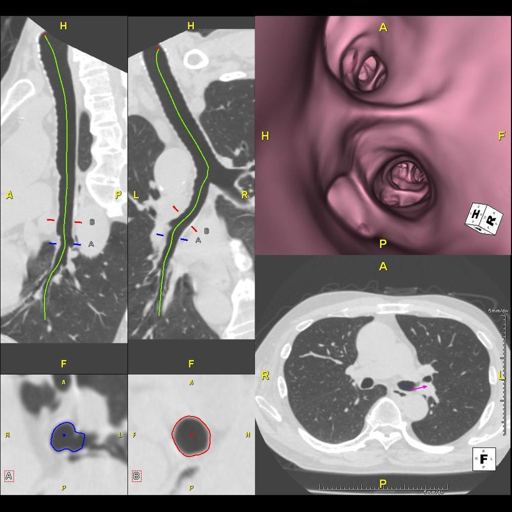 2-1-Lung_VE_1j.JPG
