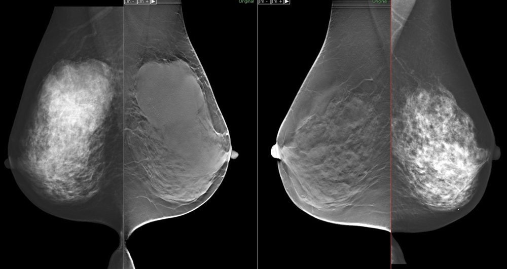 Overlay-2-image3.jpg