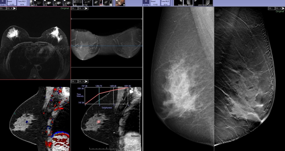Overlay-3-image6.jpg
