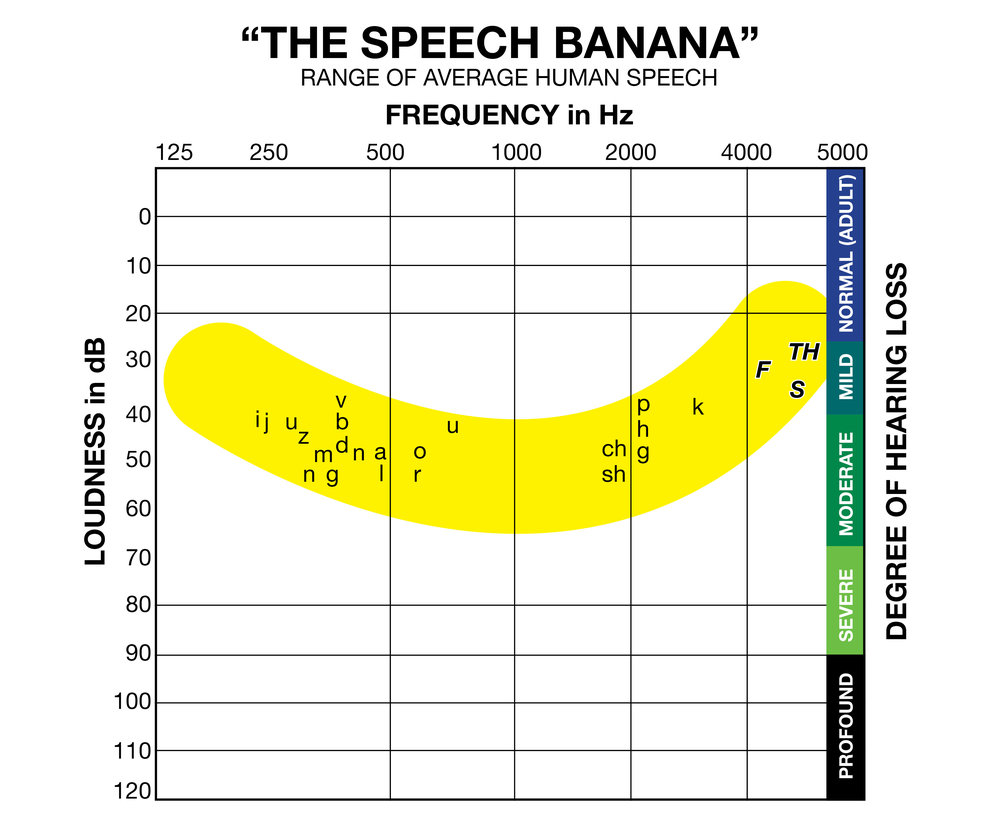 speech-banana