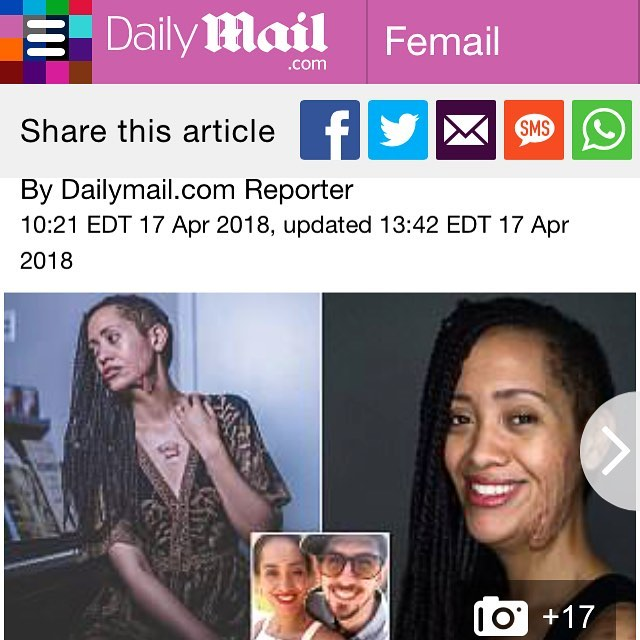 When one of your best friends in the whole world is featured on @dailymail about her story of true beauty, love, God's redemption  and hope. So ridiculously proud of you @thatgirlwiththestoryonherface! You are so brave and are absolutely beautiful. Make sure you follow and check this girl out! #beauty #beautiful #definingbeauty #dailymail