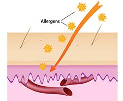 Eczema - home remedies