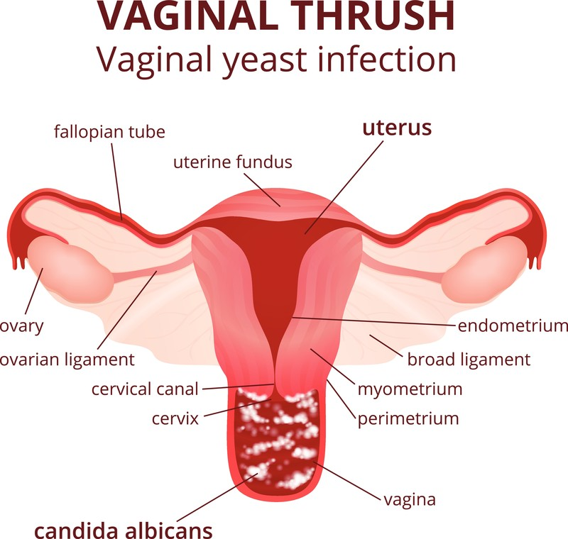 Vaginal Infection (Candidia) Calgary