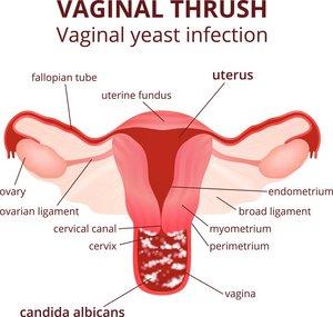 Vaginal+Infection+(Candidia)+Calgary.jpeg