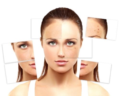 Dermatology - Acne | Cold Sores | Eczema (dermatitis) Hives | Skin Boils/Abescess | Warts Melasma (skin discoloration)